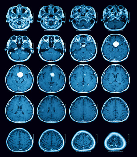 Diagnosed MRA Image