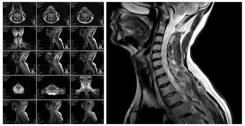 nerve damage in an MRI